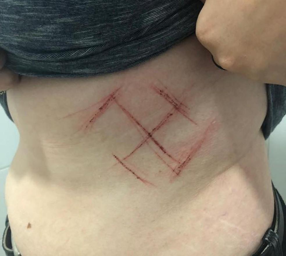 Suspeitos teriam marcado a barriga da vítima com canivete em Porto Alegre — Foto: Arquivo pessoal