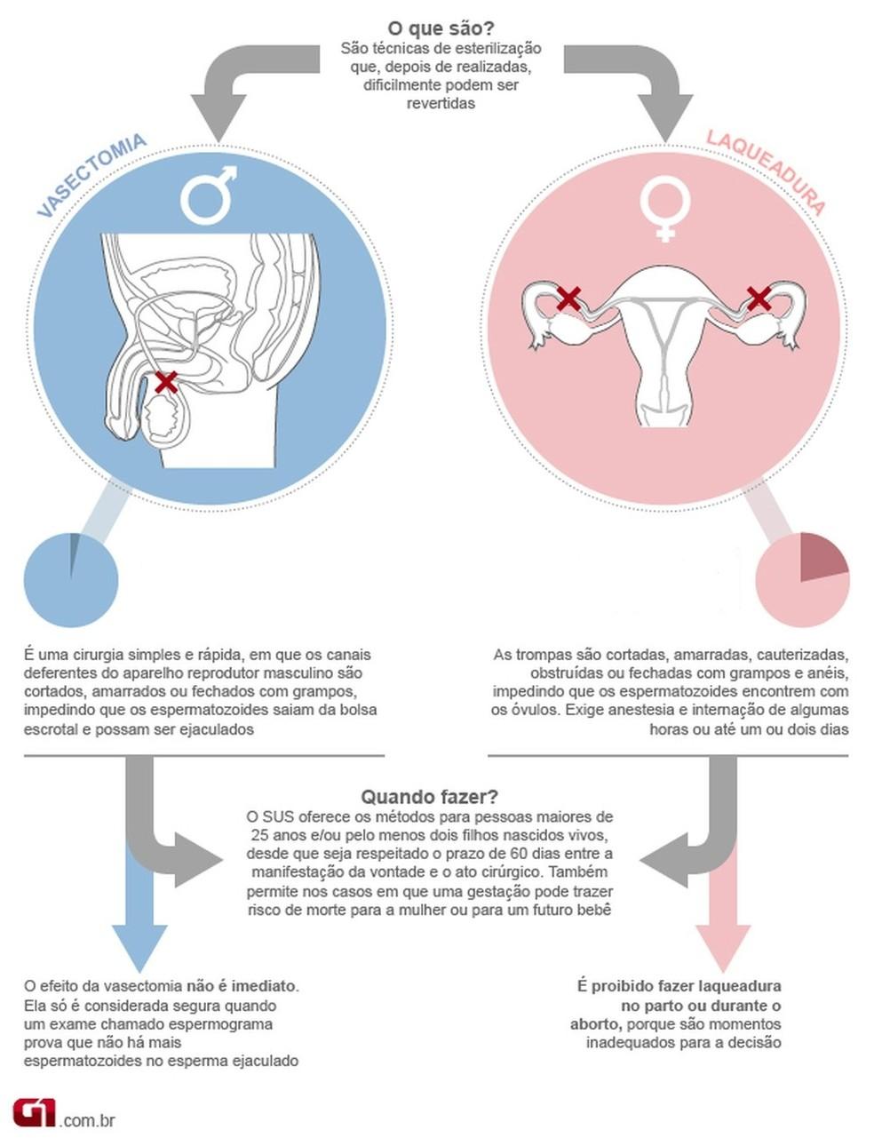 Vasectomia e laqueadura — Foto: Arte/G1