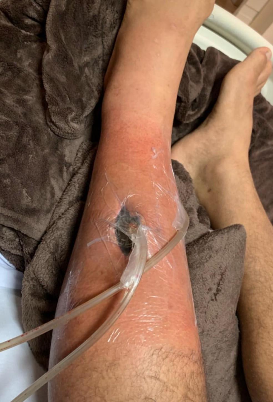 O dreno na perna de Junior Cigano — Foto: Reprodução/Instagram