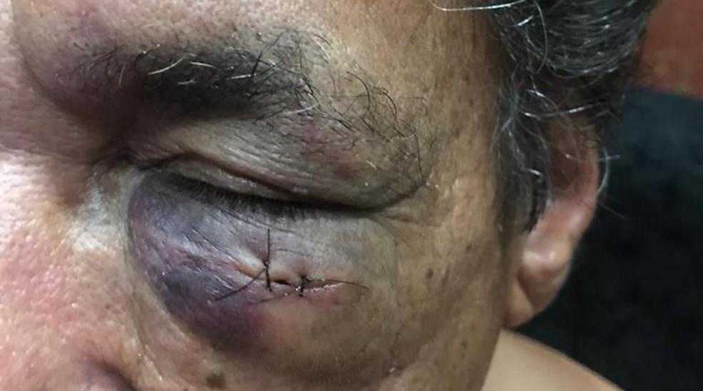 Advogado ficou com um dos olhos roxos e precisou dar pontos  — Foto: Arquivo Pessoal