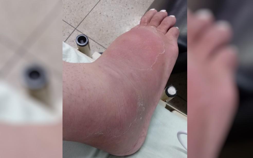 Silicone se deslocou para pé de mulher transexual — Foto: Luara Butielles Nunes/Arquivo pessoal