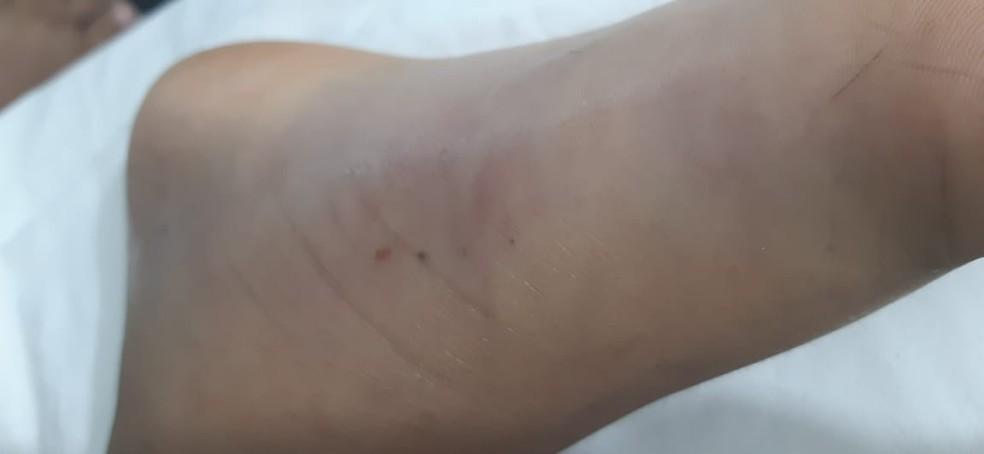 Foto tirada pela família mostra pé inchado do menino atacado pela cobra em Sorriso — Foto: Arquivo pessoal
