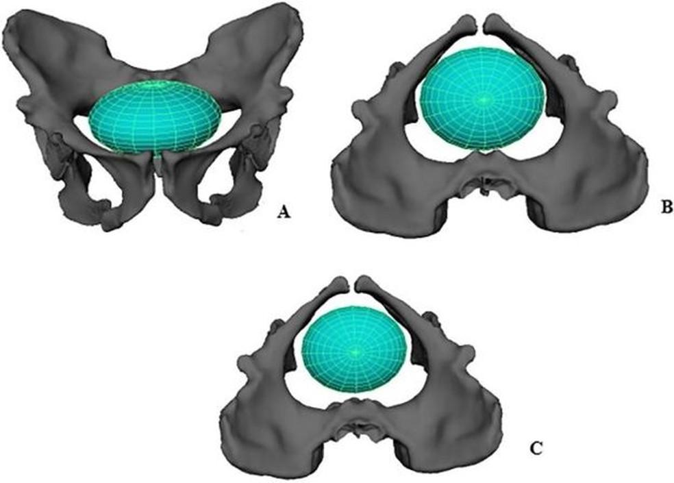 Reconstituição do parto numa 'Australopithecus sediba' — Foto: Laudicina et al, 2019/via BBC
