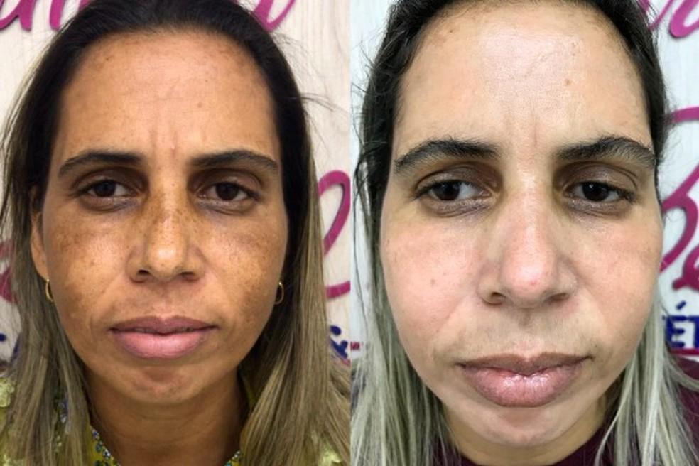 Antes e depois de Elisangela Gaudino com o tratamento contra melasm — Foto: Cimara La Belle/Divulgação
