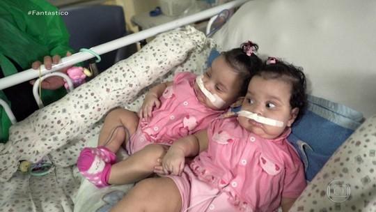 Imagens mostram cirurgia para separar gêmeas que durou nove horas