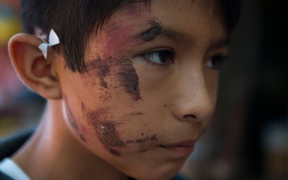 Josué Tolentino Gomez, de 11 anos, exibe ferimentos no rosto após ficar uma hora preso sob escombros depois do terremoto de quinta-feira em Juchitan, no México, no domingo (10) (Foto: AP Photo/Rebecca Blackwell)