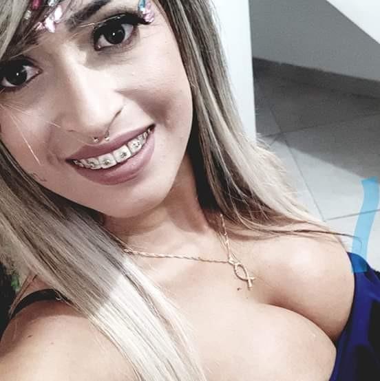 Polícia encontra cabeleireiros suspeitos de injetar silicone em jovem morta após procedimento - Noticias