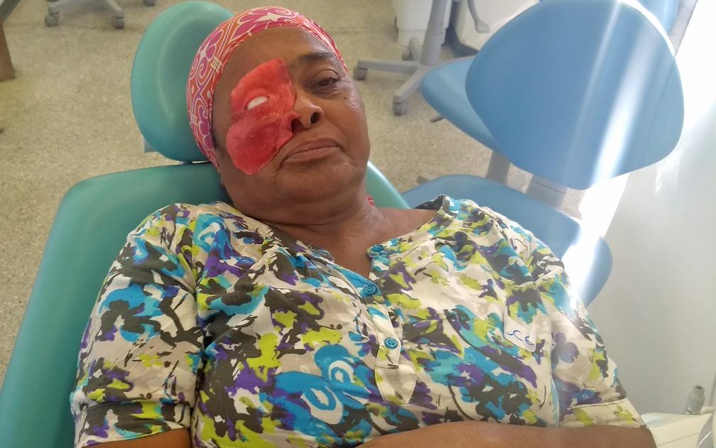 Após remoção de área acometida por tumor, Rosilene Silva testa prótese facial de silicone. (Foto: Marília Marques/G1)