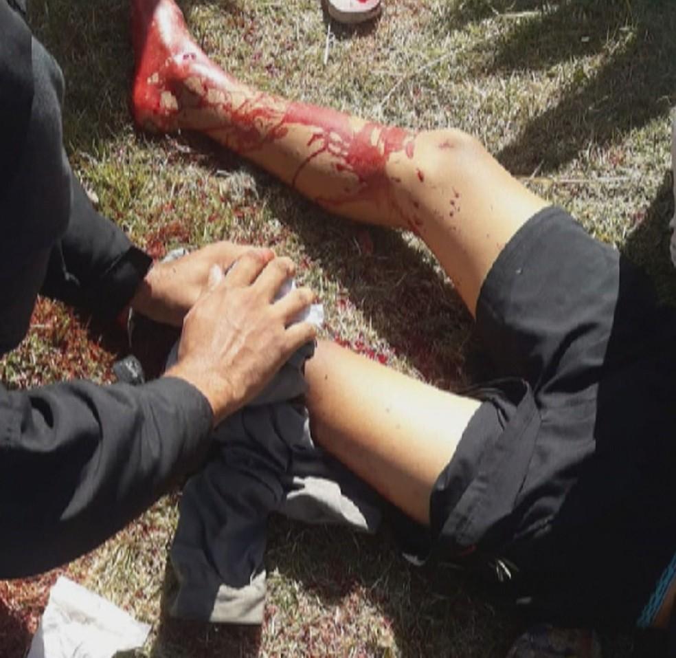Gabriel Lucas, de 15 anos, se feriu gravemente com um corte na perna com a linha chilena — Foto: Reprodução/Redes sociais