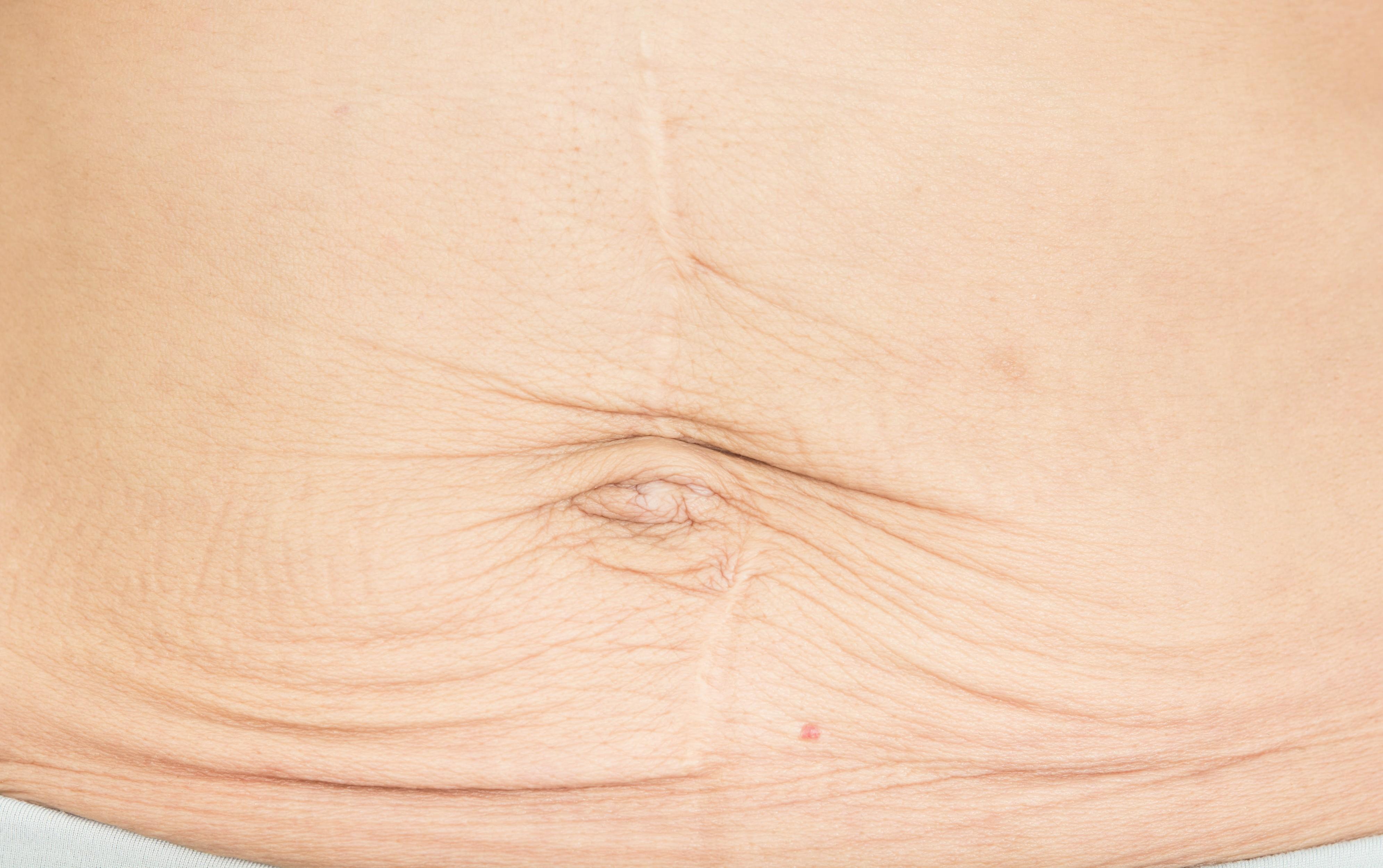 Quando a barriga volta ao normal depois do parto?