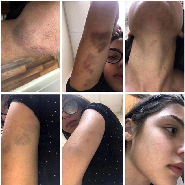 As marcas das agressões que sofreu (Foto: Reprodução/Instagram)