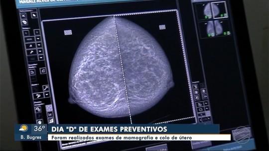 """Quase 500 exames de mamografia e colo de útero foram realizados em dia """"D"""""""