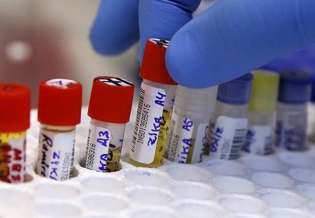 Amostras em laboratório para diagnóstico e teste para vacina contra zika vírus, no Peru (Foto: Jaime Saldarriaga/REUTERS)