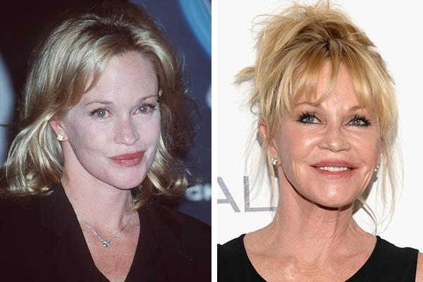 Melanie Griffith em 1998 e agora (Foto: Getty Images)