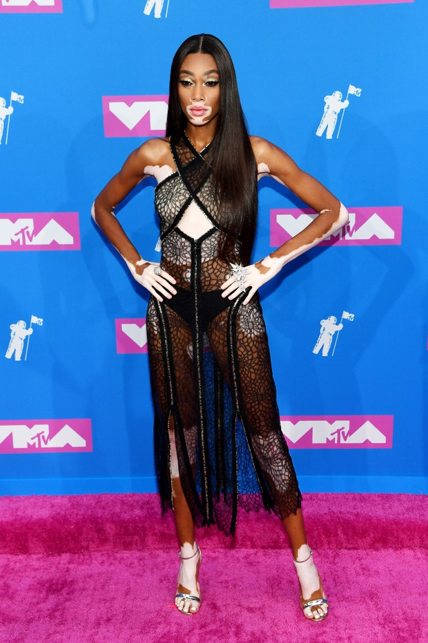 NEW YORK, NY - AUGUST 20:  Winnie Harlow attends the 2018 MTV Video Music Awards at Radio City Music Hall on August 20, 2018 in New York City.  (Photo by Nicholas Hunt/Getty Images for MTV) (Foto: Getty Images for MTV)