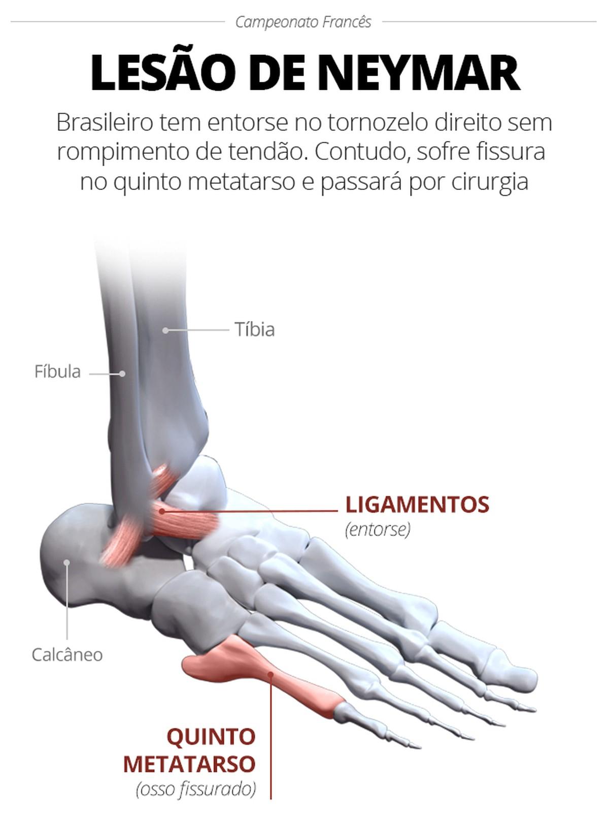 Resultado de imagem para a fratura de neymar no metatarso