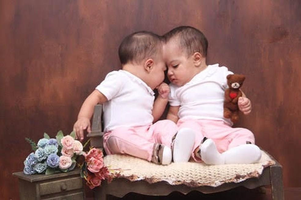 As gêmeas Mel e Lis foram separadas depois de quase 11 meses, em cirurgia inédita no DF  — Foto: Luci Vânia/Arquivo pessoal