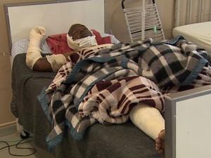 Vítima sofreu ferimentos em 60% do corpo e está internada na Santa Casa de Barretos (Foto: Ronaldo Oliveira/EPTV)