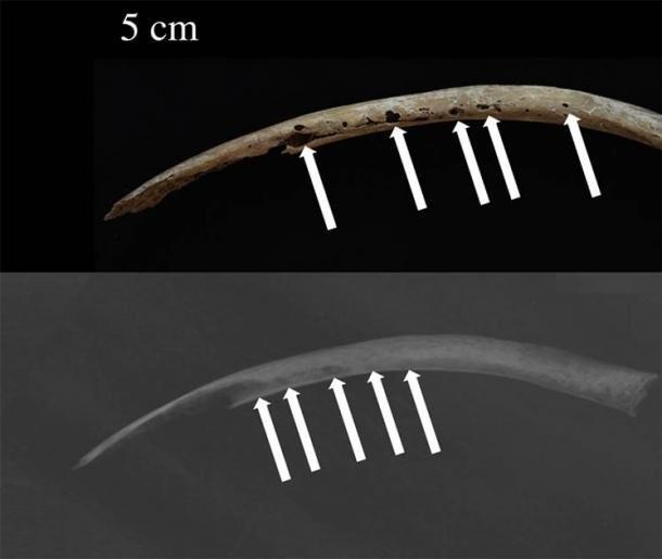 Foto (acima) e raio-x (embaixo) da costela com lesōes cancerígenas nos ossos encontrada na China (Foto: Jenna Dittmar /www.sciencedirect.com/)