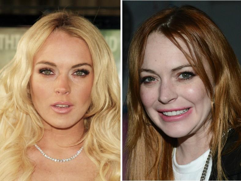 Lindsay Lohan não estava contente com sua aparência quando decidiu colocar  implantes nas maçãs do rosto fbb4b5aa98