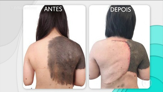 Cores e tipos de manchas na pele apontam para diferentes problemas