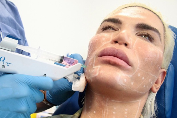 "Photo © 2018 Backgrid UK/The Grosby GroupSpain: Lagencia Grosby*EXCLUSIVE*Milan, September 22, 2018.Human Ken Doll Rodrigo Alves at the ""Villa Arbe"" clinic in Milan, with surgeon Giacomo Urtis for a facial operation. (Foto: Backgrid UK/The Grosby Group/Lag)"