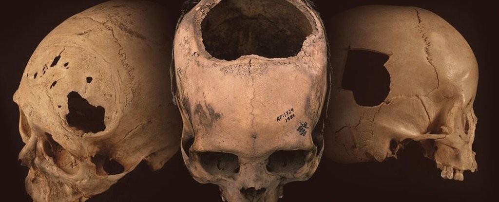 Crânios incas que indicam procedimento de trepanação (Foto: Universidade de Miami/ Reprodução)
