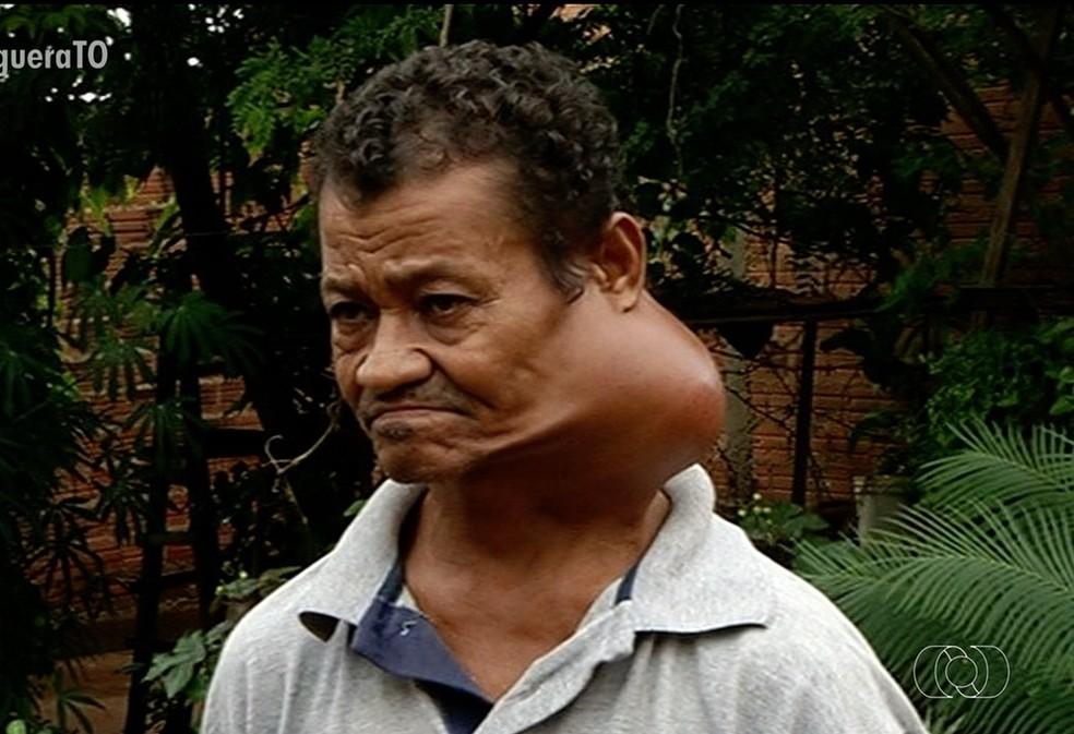 Homem não consegue fazer cirurgia pelo SUS — Foto: Reprodução TV Anhanguera