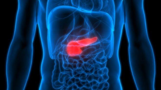Câncer de pâncreas: a combinação de drogas que pode