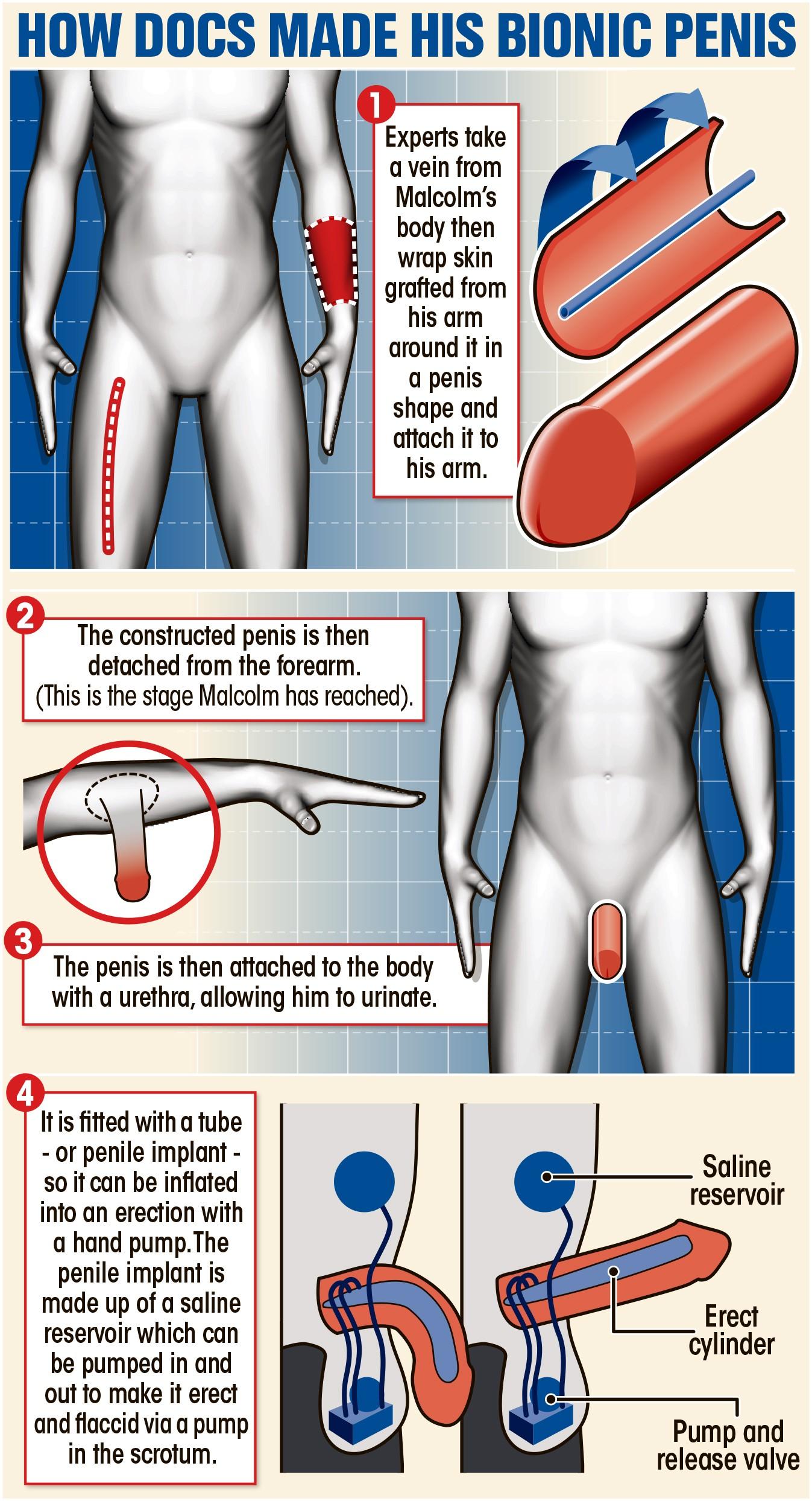 Jornal The Sun mostra como foi feito o procedimento (Foto: Reprodução The Sun)