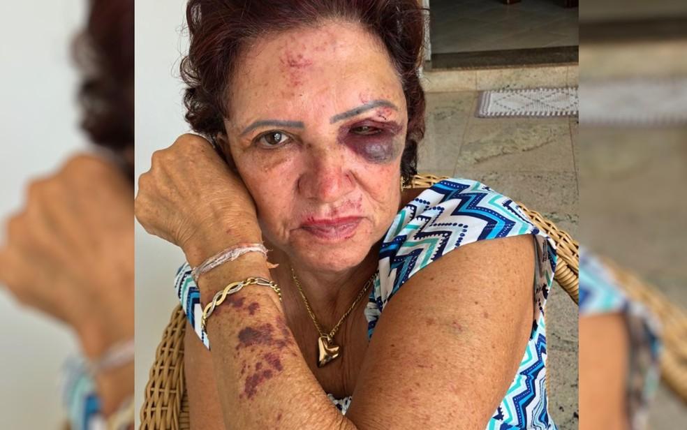Ex-primeira dama de Itaberaí, Eleni Soares, de 71 anos, mostra marcas de agressão após assalto — Foto: Rita de Cássia Mendonça/ Arquivo pessoal