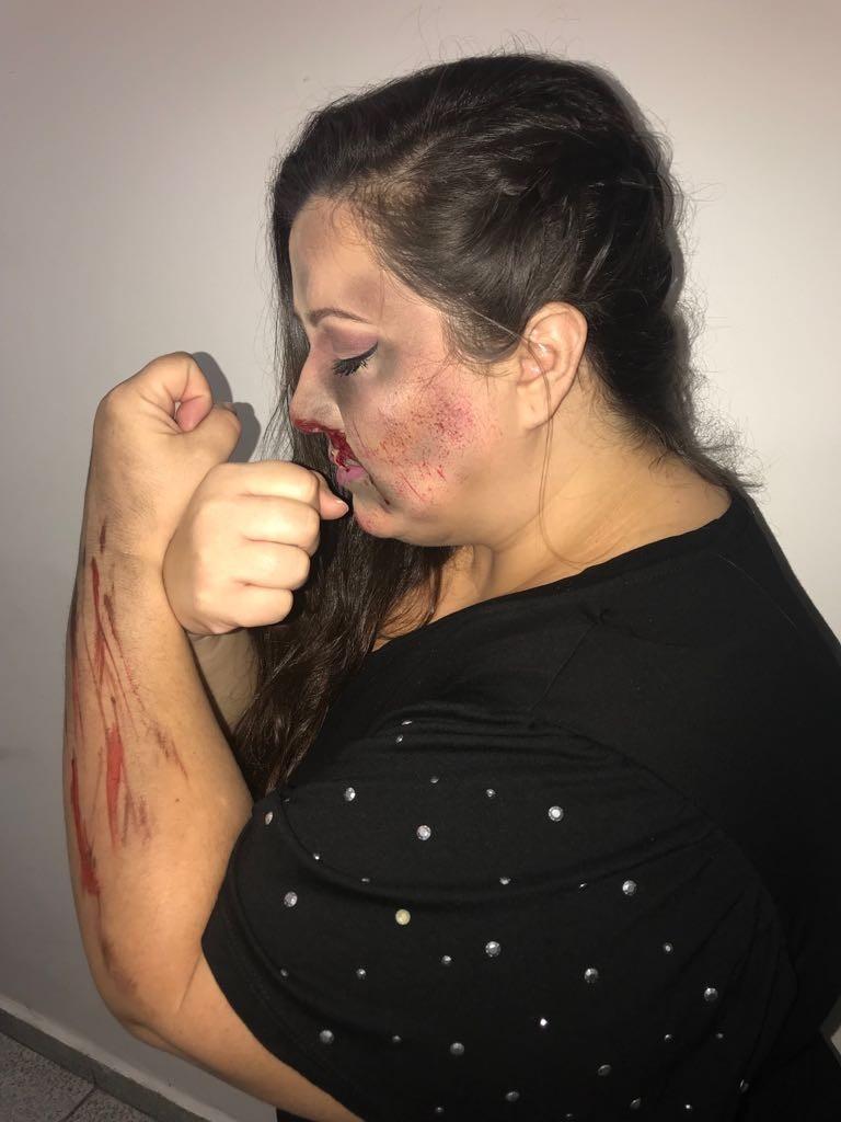 Funcionária da SES posa com maquiagem que simula ferimentos
