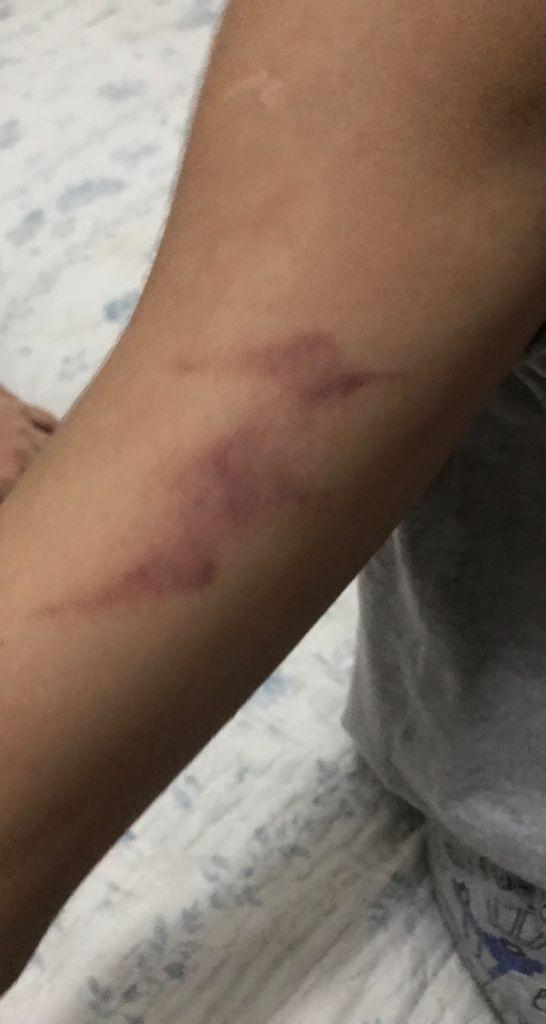 Psicóloga é presa suspeita de agredir criança autista de oito anos em MG