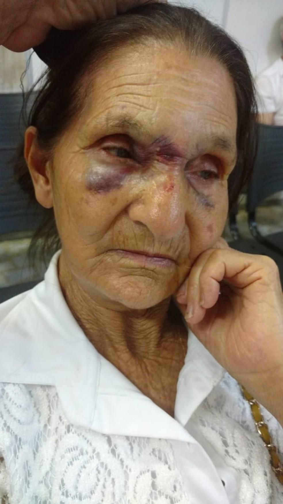 Idosa levou diversos socos e ficou com marcas no rosto — Foto: Arquivo Pessoal