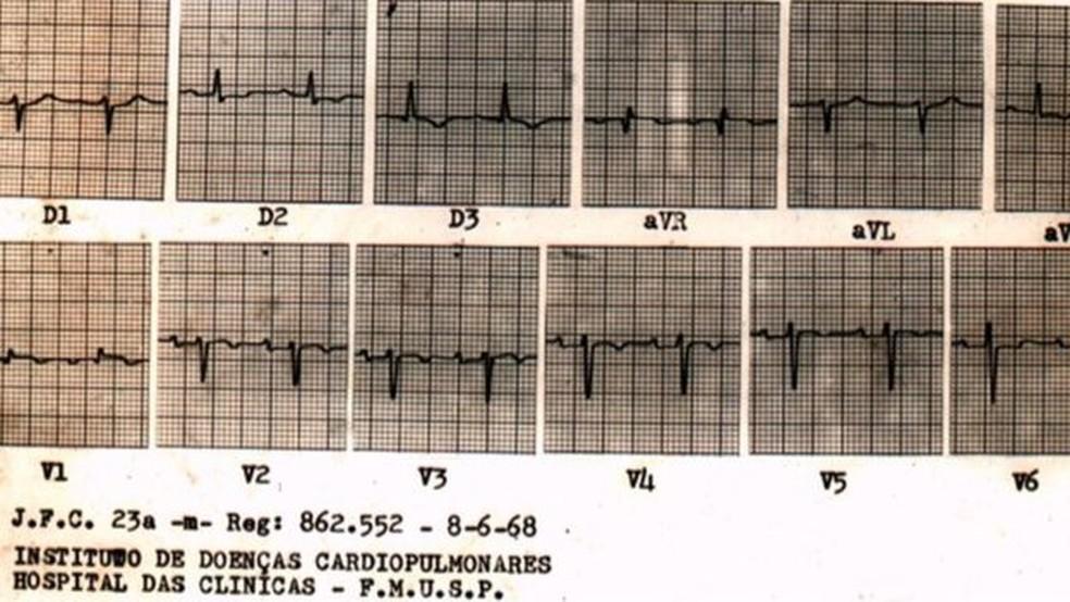 Evolução de paciente foi acompanhada pela imprensa durante semanas; ele morreu 28 dias após a operação, em consequência da rejeição do órgão (Foto: Reprodução Acervo Noedir Stolf)