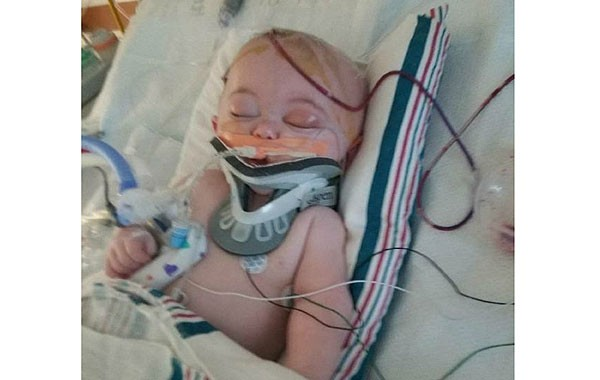 Colton aos seis meses, desacordado no hospital (Foto: Reprodução)