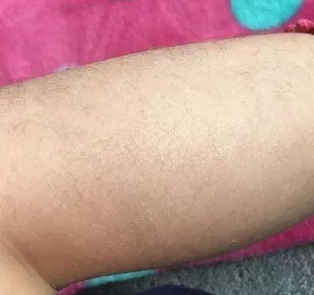 A mãe publicou uma foto da perna da filha com pêlos (Foto: Reprodução/Mumsnet)