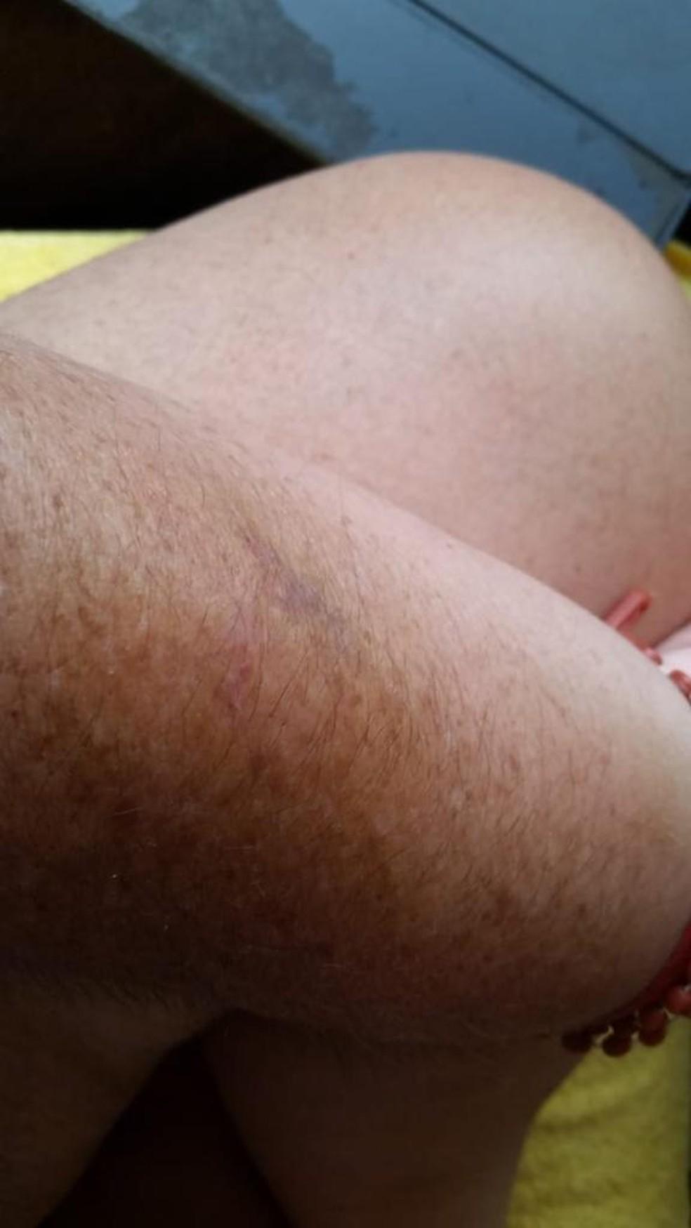 Na foto tirada pela advogada e entregue à polícia, mostra hematomas após a agressão, de acordo com a vítima — Foto: PCMS/Divulgação