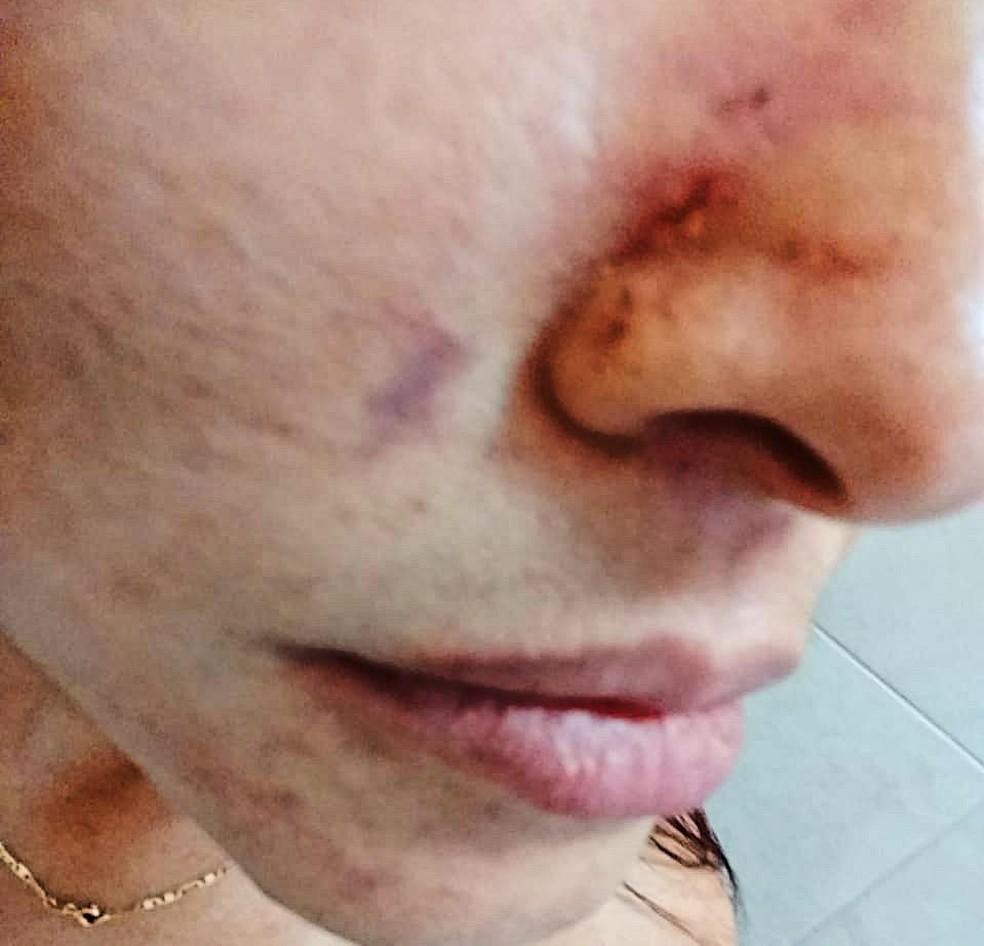 Companheiro desferiu tapas e socos no rosto de Dani — Foto: Arquivo Pessoal