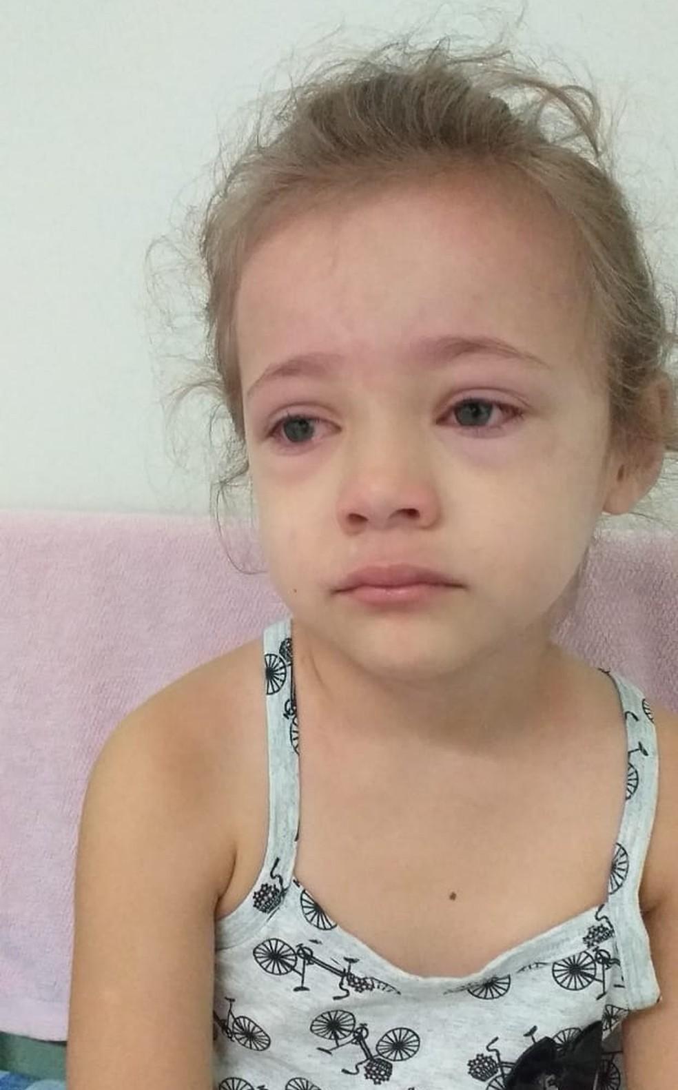Menina teve conjuntivite, um dos sintomas da doença — Foto: Arquivo Pessoal