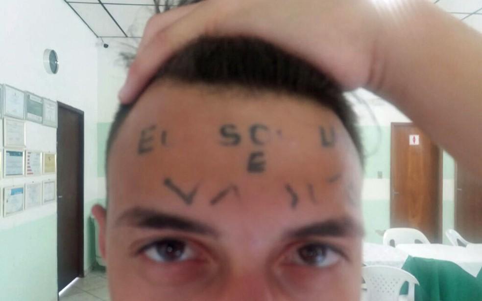 Rapaz tatuado na testa durante período em que esteve internado em clínica â?? Foto: Glauco Araújo/G1