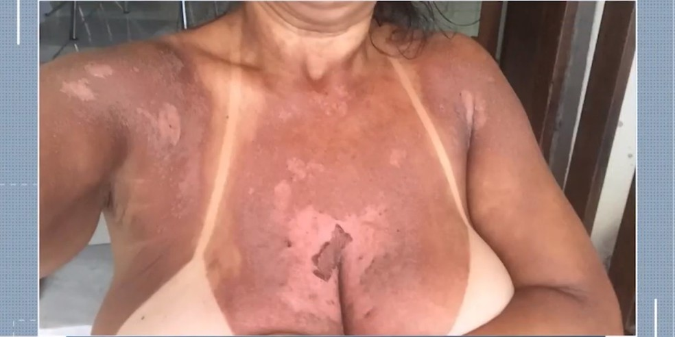 Quatro mulheres denunciam ter sofrido queimaduras após serviço de bronzeamento natural com fitas em clínica — Foto: Reprodução/TV Santa Cruz