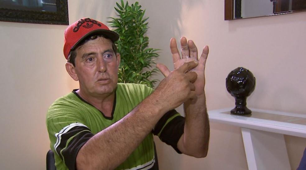 O tratorista Daniel Mendes de Almeida reclama de erro médico após ter dedo errado operado em Barretos, SP — Foto: Chico Escolano/EPTV