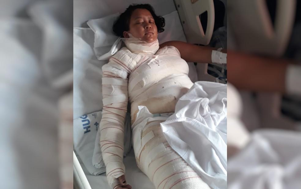 Wiviane Lima sofre queimaduras ao cozinhar com álcool por falta de gás — Foto: Divulgação/Arquivo Pessoal