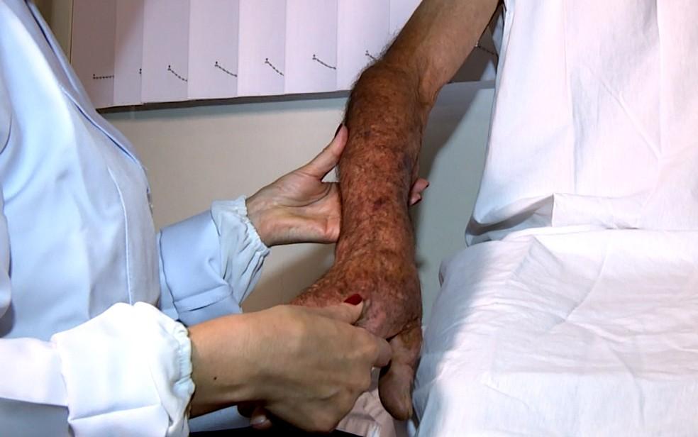 Paciente com histórico de câncer de pele, em Campinas (Foto: Reprodução/EPTV)