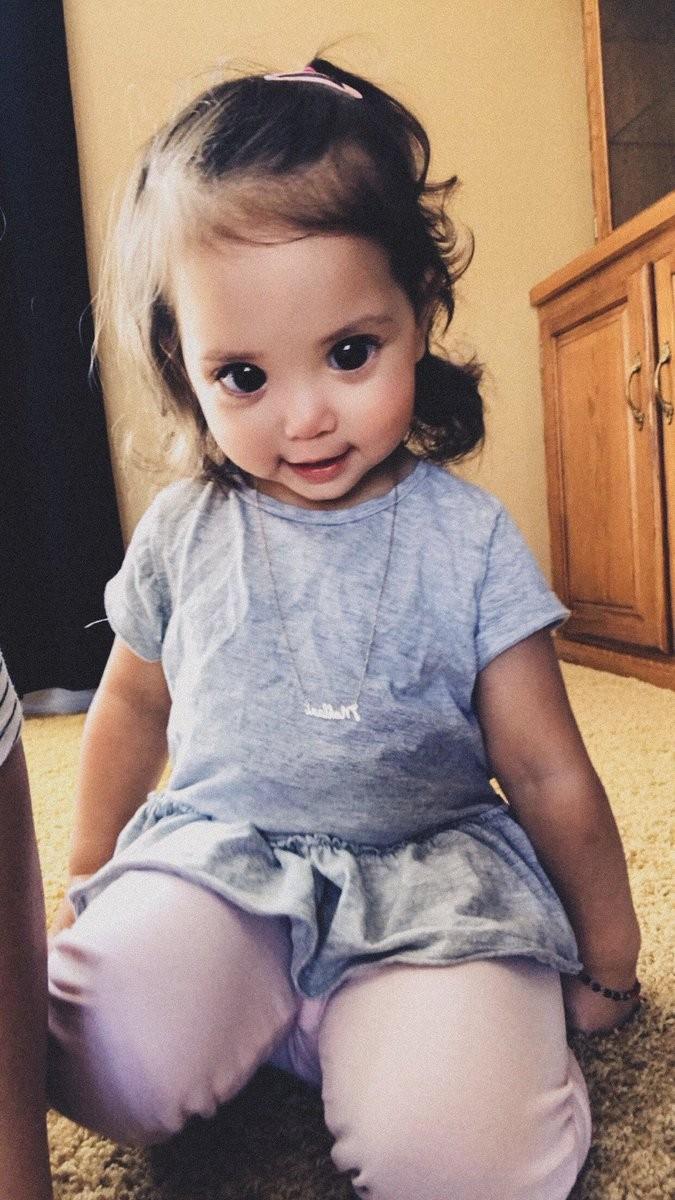 Menina de 2 anos tem síndrome Axenfeld-Rieger, (Foto: Reprodução / Twitter)