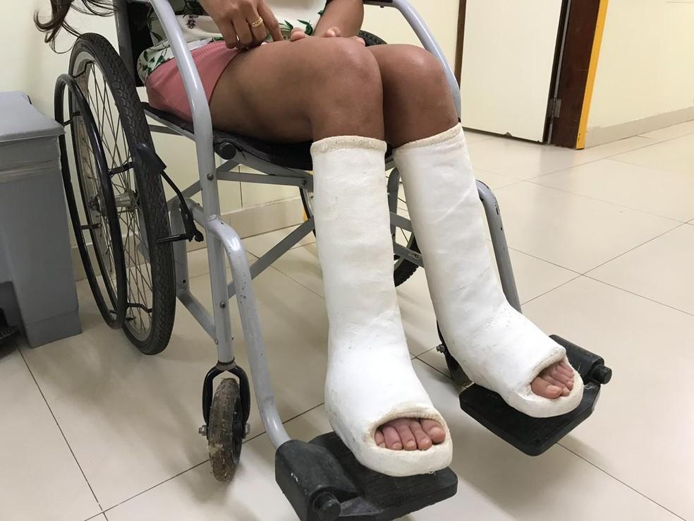 Pernas engessadas da baiana Daiana da Silva Nascimento, de 26 anos, no último dia de tratamento do pé torto congênito no Instituto Hospital de Base, em Brasília — Foto: Luiza Garonce/G1