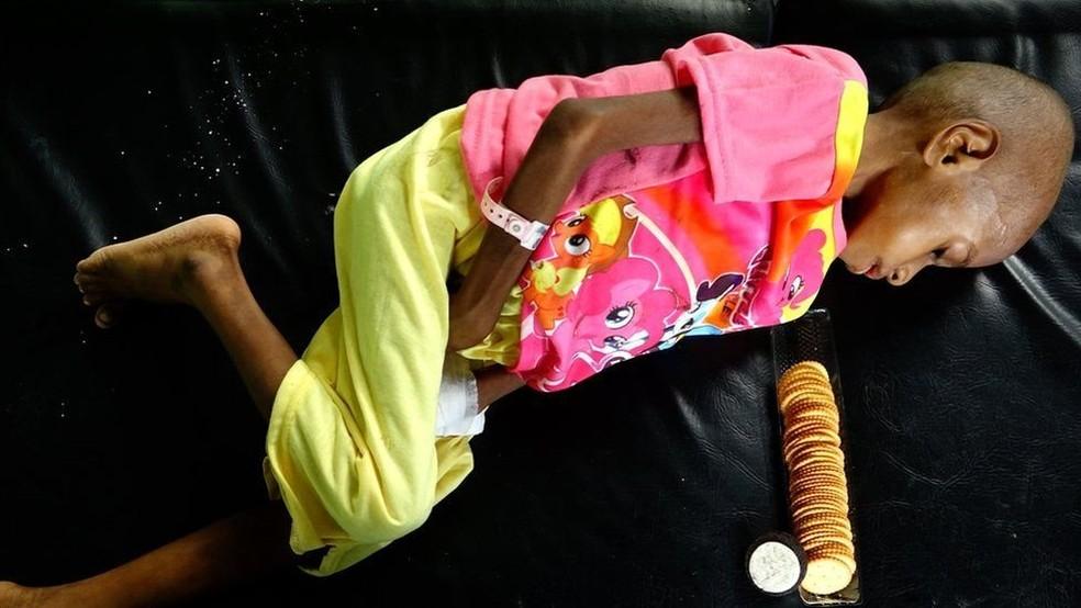 Três filhos de Ofnea Yohanna estão desnutridos; 'Nós comemos quando tem alguma comida, quando não tem, não comemos. Nós não temos um barco agora para pescar', diz (Foto: BBC)