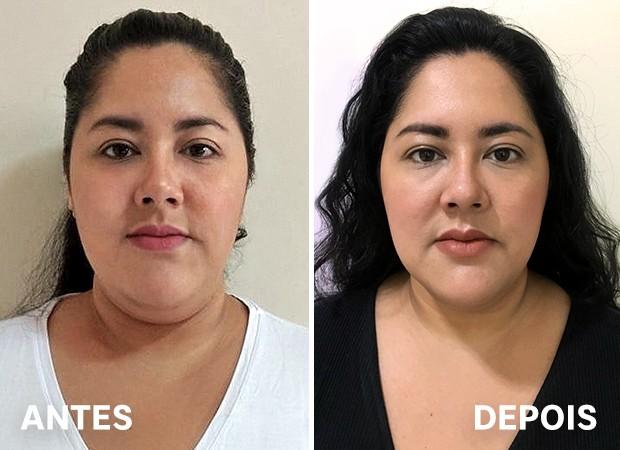 Editora Fabiana Sato antes e depois do tratamento de papada (Foto: Ed. Globo)