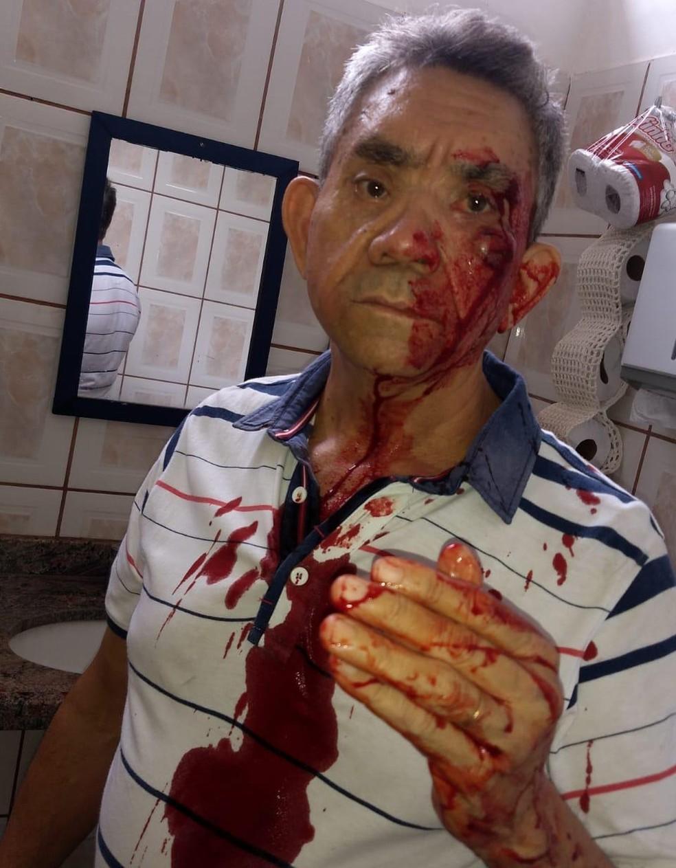 """O professor Paulo Rafael Procópio, de 62 anos, ensanguentado no banheiro da escola após a agressão: """"Decepção"""" — Foto: Arquivo pessoal"""